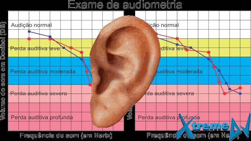 Os DJs e os exames auditivos (Audiometria) preventivos periódicos